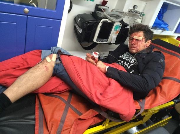 В Киеве избили шоумена Джеджулу прям под его домом. Фото 18+